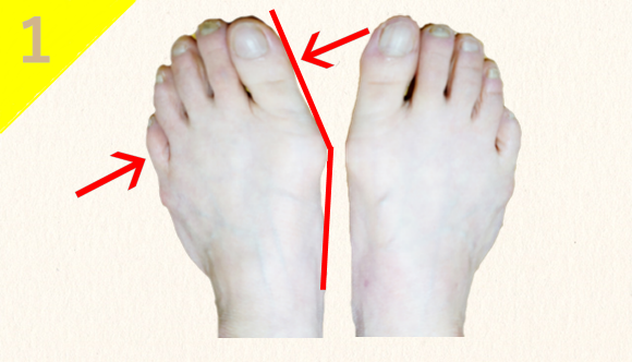 ⑴足指が変形し、曲がっている。(骨の変形)