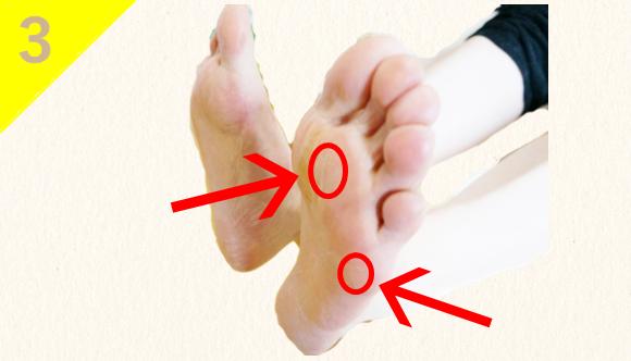 ⑶足裏の皮膚がかたくタコ・魚の目ができている。(足の関節の歪み)