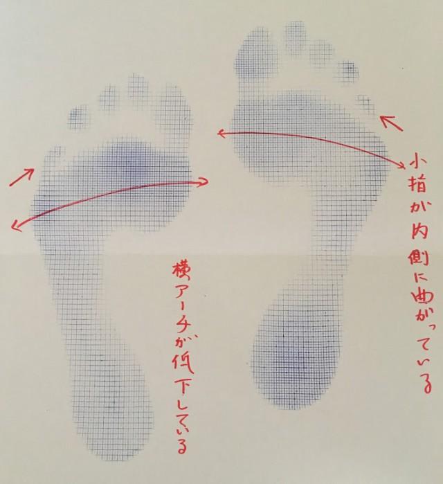 内反小肢足型