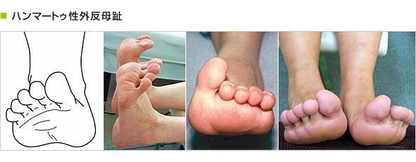 ハンマートウ性外反母趾