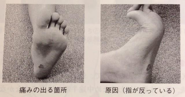 足底筋膜炎の痛みの場所