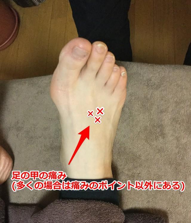 足の甲の痛みポイント