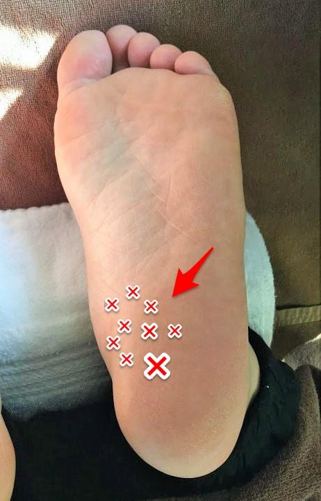 足底の痛みポイント