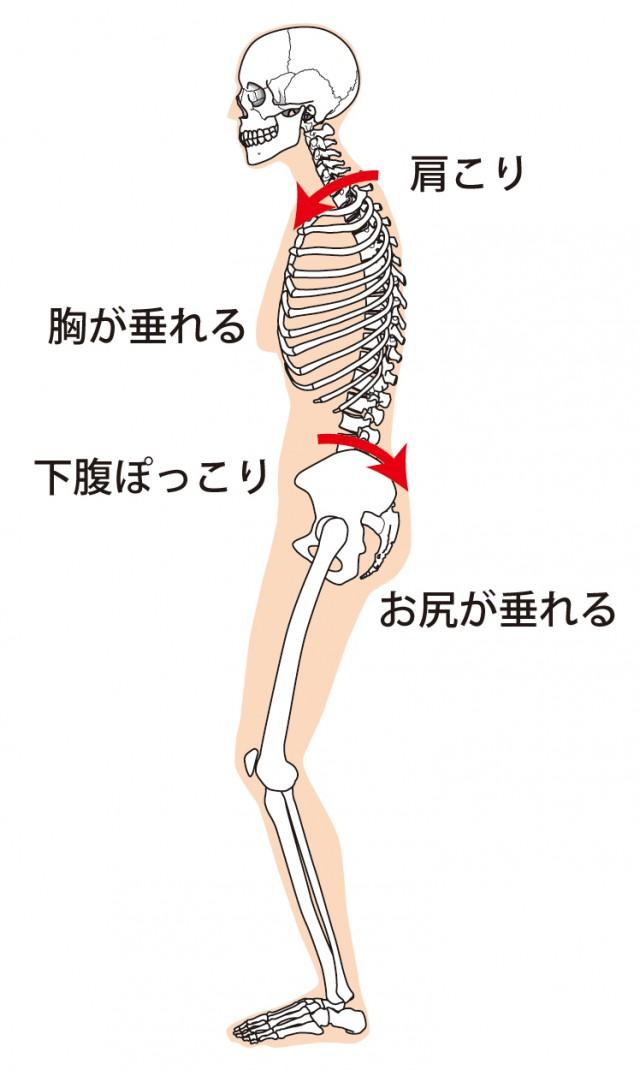 猫背の骨格