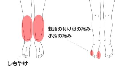 しもやけ・外反母趾・内反小肢