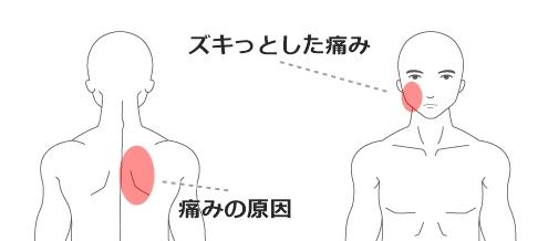 顎関節症・男性