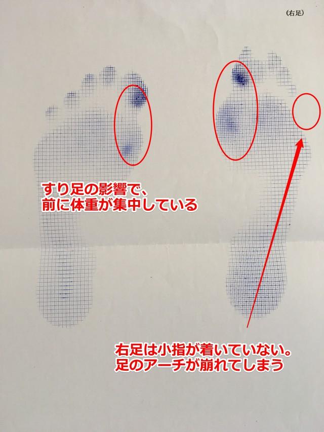 足型分析 外反母趾