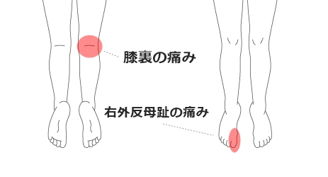 膝裏の痛み・右外反母趾の痛み
