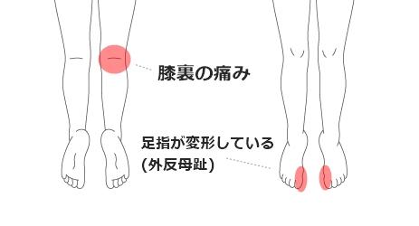 膝裏の痛み・外反母趾