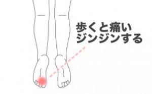 mo-tonbyou-syourei01