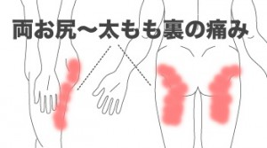 zakotusinnkei-syourei04