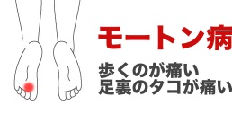 mo-ton-syourei02