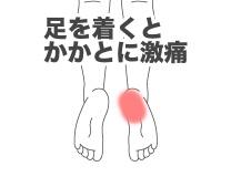 踵骨棘の症例(その3)