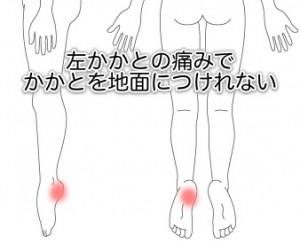 足底筋膜炎の症例8