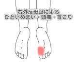 外反母趾の症例4