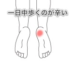 踵骨棘の症例1