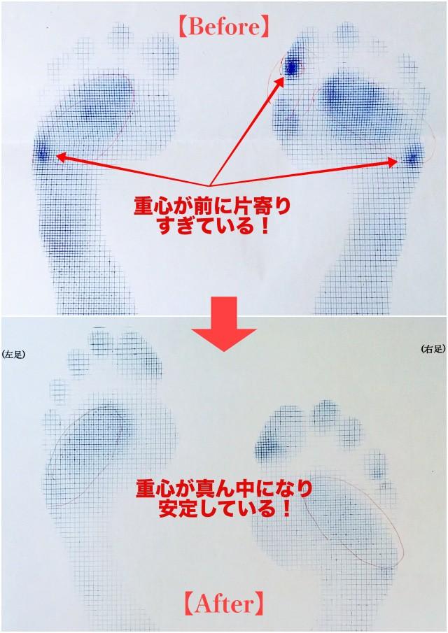 足型ビフォーアフター